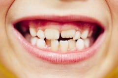 dientes imágenes de archivo libres de regalías