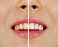 Dientes antes y después de blanquear Imagenes de archivo