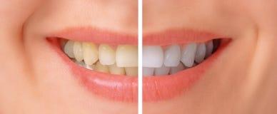 Dientes antes y después de blanquear Foto de archivo libre de regalías