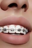 Dientes blancos hermosos con los apoyos Foto del cuidado dental Sonrisa de la mujer con los accesorios ortodontic Tratamiento de  Foto de archivo libre de regalías