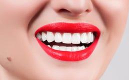 Dientes blancos y labios rojos Sonrisa femenina perfecta después de blanquear los dientes Imagen de archivo libre de regalías