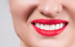 Dientes blancos y labios rojos Sonrisa femenina perfecta después de blanquear los dientes Foto de archivo libre de regalías