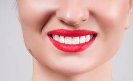 Dientes blancos y labios rojos Sonrisa femenina perfecta después de blanquear los dientes Foto de archivo