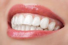 Dientes con blanquear la sonrisa de la bandeja dental imágenes de archivo libres de regalías