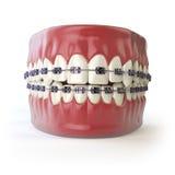Dientes con los apoyos o soportes en blanco Estafa del cuidado dental Imágenes de archivo libres de regalías