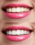 Dientes de la mujer antes y después de blanquear Foto de archivo