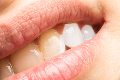 Dientes de la mujer antes y después del dentista Whitening Procedure Fotos de archivo