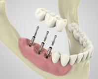 dientes de la representación 3D Foto de archivo