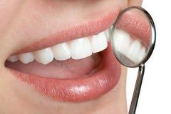 Dientes dentales Fotos de archivo libres de regalías