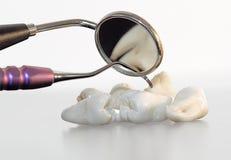 Dientes e instrumentos dentales imagen de archivo libre de regalías