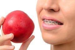 Dientes femeninos con los apoyos dentales y la manzana roja Foto de archivo libre de regalías