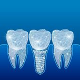 Dientes sanos y implante dental odontología Implantación de dientes humanos Ilustración stock de ilustración