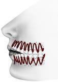 Dientes - vista cortada de dientes y de gomas circundantes Foto de archivo libre de regalías
