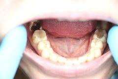 Diep bederf, open kanalen, schoonmakende kanalen Patiënt bij stomatolon op toelating, periodontitisbehandeling stock fotografie