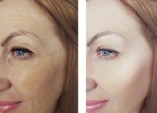 Diferença fêmea dos enrugamentos da beleza do olho antes e depois dos tratamentos antienvelhecimento da regeneração da dermatolog fotos de stock royalty free