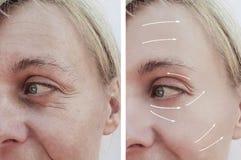 Diferença paciente antes e depois dos procedimentos, seta do enchimento adulto fêmea da dermatologia da remoção dos enrugamentos imagem de stock royalty free