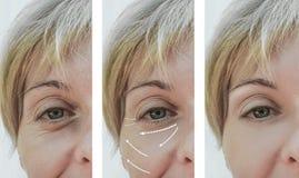 Diferença paciente antes e depois dos procedimentos, seta do enchimento adulto fêmea do rejuvenescimento da remoção dos enrugamen imagem de stock