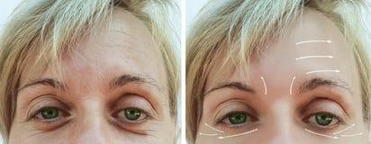 Diferencia paciente antes y después de procedimientos, flecha de las arrugas del retiro de la terapia del contraste del llenador  foto de archivo libre de regalías