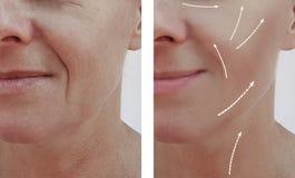 Diferencia paciente antes y después de procedimientos, flecha de las arrugas del retiro del rejuvenecimiento del llenador adulto  imagenes de archivo