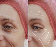 Diferencia paciente madura antes y después de procedimientos cosméticos, flecha del tratamiento facial femenino de las arrugas fotos de archivo libres de regalías