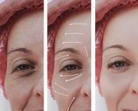 Diferencia paciente madura antes y después de procedimientos, flecha del rejuvenecimiento facial adulto femenino de las arrugas imágenes de archivo libres de regalías