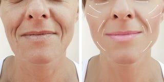 Diferencia paciente madura antes y después de procedimientos, flecha de las arrugas del llenador facial adulto femenino del rejuv imagen de archivo