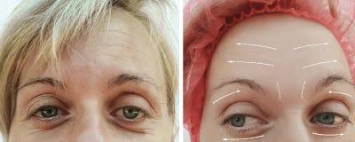 Diferencia paciente madura antes y después de procedimientos, flecha de las arrugas del retiro del llenador adulto femenino del r imagenes de archivo