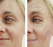 Diferencia paciente madura antes y después de procedimientos, flecha de las arrugas del retiro del llenador facial adulto femenin fotos de archivo libres de regalías