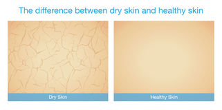 The difference between dry skin and healthy skin. This illustration about skincare Royalty Free Stock Image