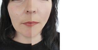 Differencecollage femelle de rides de visage vieillissant l'esth?ticien de levage m?r de dermatologie avant et apr?s la th?rapie  photographie stock