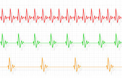 Different Heartbeats Illustration Stock Photography