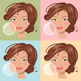 Different skin problems. Vector illustration Royalty Free Stock Images