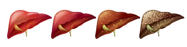 Different stages of human liver. Illustration royalty free illustration