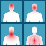 Different symptoms of colds, flu. Stage. Vector. Different symptoms of colds, flu. Stage. The outline of a man with diseased organs: headache, runny nose Royalty Free Stock Photo