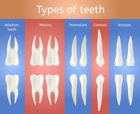 Different Type of Tooth. 3d Realistic Poster. royalty free illustration