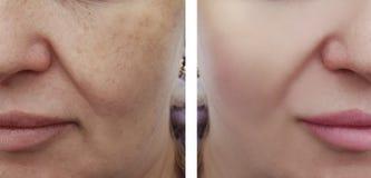 Differenza facciale delle grinze della donna prima e dopo le procedure di correzione fotografia stock