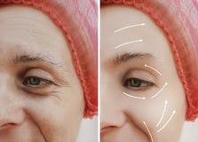 Differenza paziente matura prima e dopo le procedure cosmetiche, freccia di trattamento facciale adulto femminile delle grinze immagine stock libera da diritti