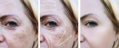 Differenza prima e dopo le procedure, freccia, pigmentazione di trattamento di correzione delle grinze della donna fotografie stock