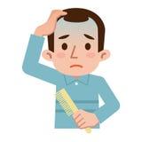 Difficoltà di capelli d'assottigliamento Fotografia Stock