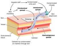 Diffusione dell'infezione tramite cannula Immagini Stock