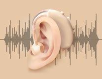 Digitaal gehoorapparaat achter het oor Oor en correcte versterker op achtergrond van correcte golf Behandeling en prosthetics o Stock Afbeelding