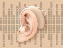 Digitaal gehoorapparaat achter het oor, op de achtergrond van correcte golfdiagram Behandeling en prosthetics van verlies van het Stock Foto's