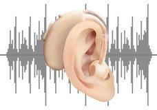 Digitaal gehoorapparaat achter het oor, op de achtergrond van correcte golfdiagram Behandeling en prosthetics van verlies van het Royalty-vrije Stock Foto's