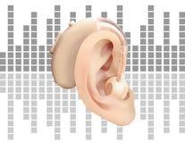 Digitaal gehoorapparaat achter het oor, op de achtergrond van correcte golfdiagram Behandeling en prosthetics van verlies van het Royalty-vrije Stock Fotografie