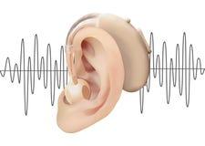 Digitaal gehoorapparaat achter het oor, op de achtergrond van correcte golfdiagram Behandeling en prosthetics van verlies van het Stock Foto