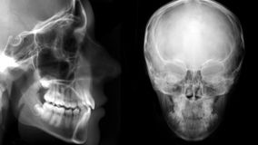 Digital cephalometric, frontal and lateral x-ray Royalty Free Stock Photography