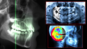Digital dental scan Stock Photo
