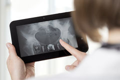 Digital era. Young female doctor listing whole body x-ray scans on tablet stock image