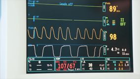 Digital heart monitor read out close up with lines graphing and numbers displayed of patient being measured. Digital heart monitor read out close up with lines stock video footage