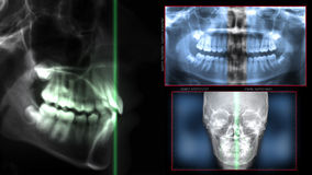 Digital-Laser-Radiographietechnologie stockfotografie